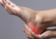 Nếu 4 điểm này của bàn chân không có dấu hiệu bất thường, chứng tỏ cơ thể bạn rất khỏe mạnh