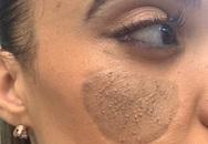 Lời kêu cứu của bà mẹ có mảnh da vùng kín trên mặt