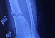 Nối bàn chân bị cắt đứt