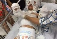 Cháu bé 6 tuổi bị dì ruột tẩm xăng đốt hiện ra sao?