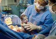 Hài hước khoảnh khắc em bé 'lườm' bác sĩ khi chào đời