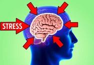 Stress có thể khiến não bạn bị teo nhỏ và đây là cách ngăn chặn