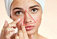 Cần chú ý sức khỏe khi nổi mụn tại 3 vị trí trên mặt