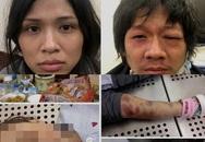 Màn kịch yêu thương của mẹ đẻ và bố dượng bạo hành bé gái 3 tuổi đến tử vong