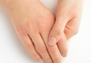 10 dấu hiệu cơ thể bạn đang mang trọng bệnh hoặc sức khỏe tụt dốc