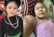Nhói lòng trước cảnh bé gái dân tộc Tày xinh xắn mắc ung thư xương, khối u ở tay ngày một lớn