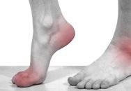 4 dấu hiệu xuất hiện ở chân cảnh báo nhiều bệnh nguy hiểm