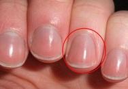 Người sống thọ thường xuất hiện 4 dấu hiệu thú vị này trên bàn tay: Thử kiểm tra ngay xem bạn có đủ hay không!