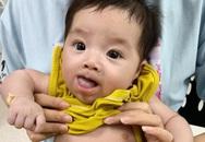 Cắt nang ống mật chủ to bằng nắm tay cho 2 bé chưa đầy 2 tháng tuổi