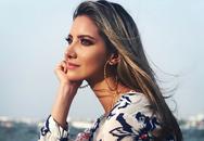 Nhan sắc hoa hậu Colombia phải cưa chân