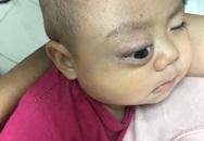 Xót thương bé trai dân tộc Nùng 7 tháng tuổi bị khối u đẩy lồi mắt ra ngoài
