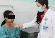 Thiếu nữ 17 tuổi mặt sưng phù, lở loét vì lột trắng da