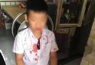 Vụ học sinh lớp 1 bị bố của bạn hành hung: Không chỉ phản giáo dục mà còn côn đồ