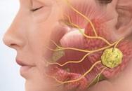 Cảnh báo 6 bệnh ung thư di truyền, nếu gia đình có 1 người mắc thì người thân cần khám sớm