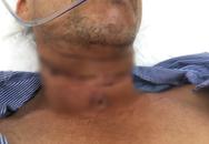 Người đàn ông bị dây diều cắt ngang vùng cổ, suýt mất mạng