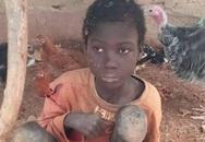 Bé 12 tuổi bị bố xích trong chuồng gia súc, ăn thức ăn dê suốt 2 năm