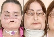 Người đầu tiên ghép mặt ở Mỹ qua đời