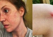 Bị côn trùng cắn, người phụ nữ này phải đối mặt với hội chứng dị ứng vô cùng hiếm gặp và không thể ăn một số loại thịt