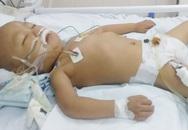Sau bữa ăn tối, bé trai 4 tuổi đang mắc ung thư máu bỗng suy đa tạng, hôn mê suốt 2 tháng, đối mặt với tử thần