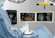 Siêu âm định vị khối u não để phẫu thuật