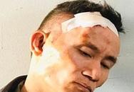 Kẻ ôm lựu đạn cố thủ ở TP.HCM bị bắt khi đi xe cảnh sát