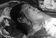 Hẹn đánh ghen, một phụ nữ bị đâm rách mặt