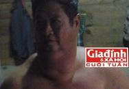 Căn bệnh bí hiểm của người đàn ông có bộ ngực khổng lồ