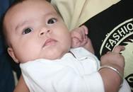 Khuôn mặt đẹp như thiên thần của bé 3 tháng tuổi bị biến dạng bộ phận sinh dục