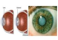 Suy giảm thị lực dẫn đến mù lòa