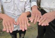 Hàng trăm trẻ dính tay, thừa ngón kỳ lạ
