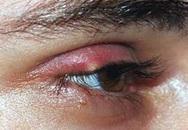 Chắp mắt, cẩn thận ung thư