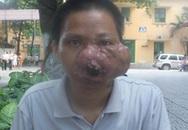Khối u to như quả bưởi trên mặt