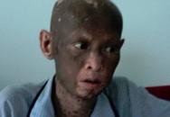 Bệnh lạ khiến một người sụt 40kg, lột da
