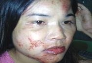 Cô giáo bị chồng đánh bầm dập, chấn thương nặng