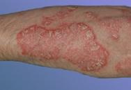 Bệnh vẩy nến khiến da sần sùi