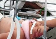 Ngã ban công, bé 3 tuổi chấn thương sọ não