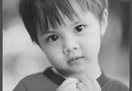 Cần quan tâm đến triệu chứng rối loạn thần kinh ở trẻ em