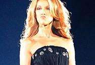 """Celine Dion gây """"sửng sốt"""" vì chân đầy lông!"""