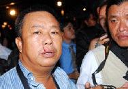Hội Nhà báo yêu cầu xử lý nghiêm vụ đánh phóng viên