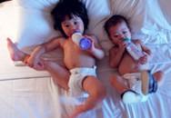 Trẻ có thể bị gù do bệnh còi xương