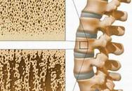 Đái tháo đường và rối loạn mật độ xương
