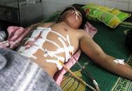 Một thanh niên bị dao đâm ngập sâu trong lồng ngực