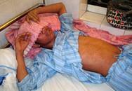 Đông y phòng trị sởi biến chứng