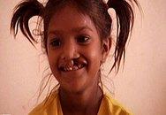 Bé gái sứt môi mang nụ cười đến lễ trao giải Oscar