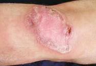 Những triệu chứng báo động bệnh lao da