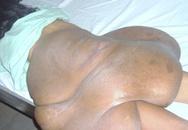 Cắt khối u chiếm 2/3 trọng lượng cơ thể một phụ nữ