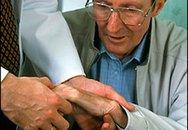 Bấm huyệt phòng chữa liệt run Parkinson