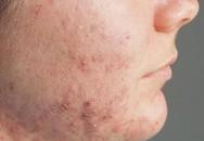 6 bài thuốc dân gian chữa bệnh ngoài da