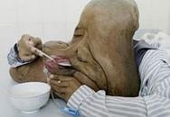 5 loại bệnh kỳ lạ tại châu Á