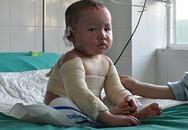 Bé 3 tuổi bị bỏng chuẩn bị ra viện, về quê ăn Tết